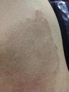 A patch of skin rash